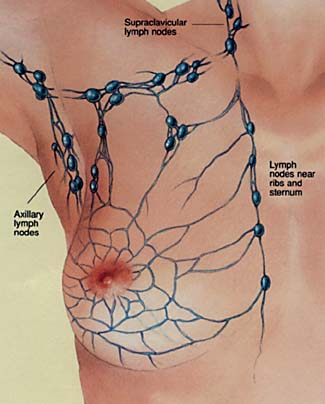 Breast Cancer Topic Anyone Ever Heard Of Lymph Node In Breast
